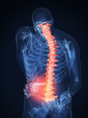 New Jersey Spine Injury Accident